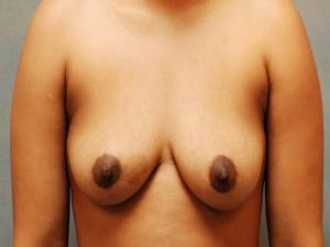 Manhattan Breast Augmentation Before 5